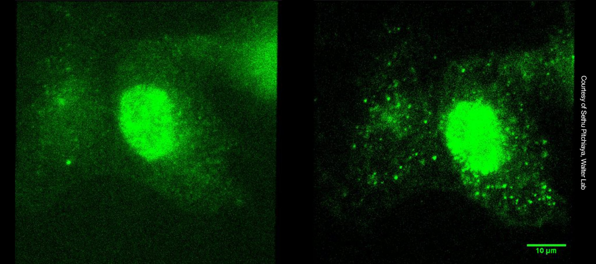 Widefield fluorescence and HILO imaging images